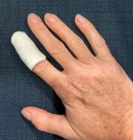 Mallet Finger Injuries – Not so small…