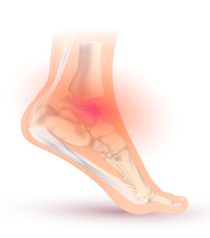 How to Treat an Ankle Sprain with Physiotherapy