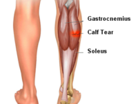 Patient Experience - Calf Tear 1