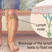 Tips for Patients with Lymphoedema