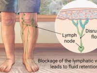 What is Lymphoedema? 1