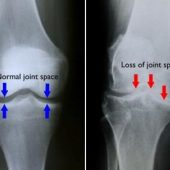 ARE YOU SUFFERING FROM OSTEOARTHRITIS?